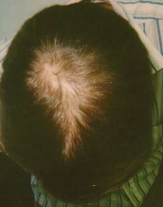 Hair-loss regrowth