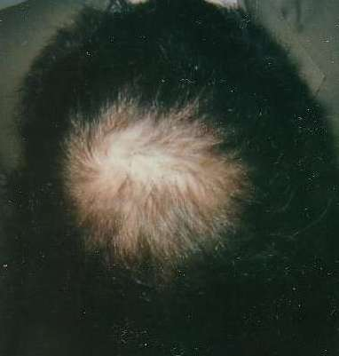 hair loss treatment regrowth